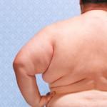 Проблема лишнего веса в России