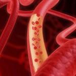 Учёные изобрели миниатюрное устройство, которое способно замерить кровяное давление, в сердце, а име...
