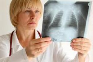 Ученые выяснили, что туберкулез зародился в Африке